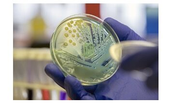 Mycobacterium Tuberculosis - A Complete Overview