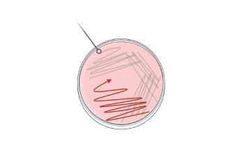 ONPG Test, e coli ONPG Test, ONPG Test procedure, ONPG Test results, ONPG Test reagents