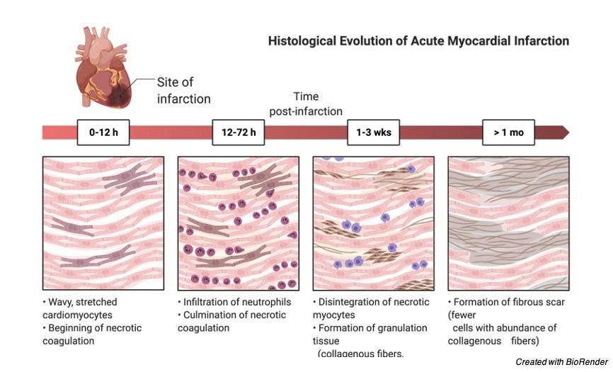 Myocardium, Myocardium Function, Myocardium Definition, What is Myocardium, 2